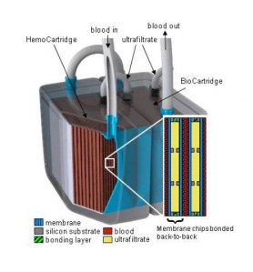 Schematic of USCF's artificial kidney.  From http://www.ucsf.edu/news/2010/09/4450/ucsf-unveils-model-implantable-artificial-kidney-replace-dialysis